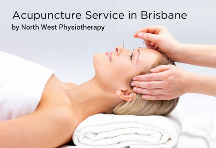 Acupuncture Service in Brisbane by North West Physiotherapy