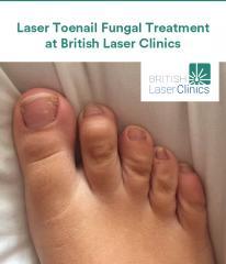Laser Toenail Fungal Treatment at British Laser Clinics